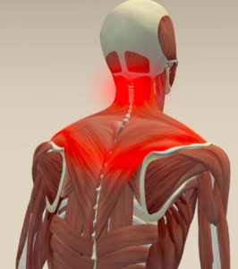 Neck-Pain-begins-between-shoulders