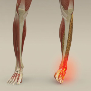 legs, feet, ankles pain relief, sprained ankle, fofoot pain, leg pain, ankle pain, stretches for the legs, online osteopathy, online osteopathy on demand, online osteopath, osteopath, osteopathy, stretch for life, online stretching, immediate pain relief, stretches for the foot, ankle stretches,