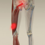 Hamstring-Pain-from-Groin